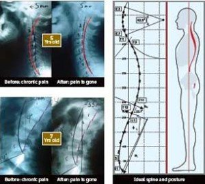 Posture Ray Spine X-Rays